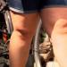Kampf dem Gelenkschmerz - Was tun bei Arthrose?