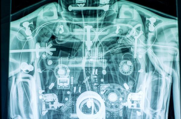 Bild 1 von 4: Röntgeneinblick in eine Hightech-Puppe im Simulationskrankenhaus des Klinikums Stuttgart