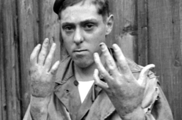 Bild 1 von 7: Die Grausamkeit des Krieges wird an diesem im Pazifikkrieg (1941-1945) verstümmelten Soldaten deutlich.