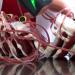 Gefährliche Bluttransfusionen - Was hilft gegen das Risiko?